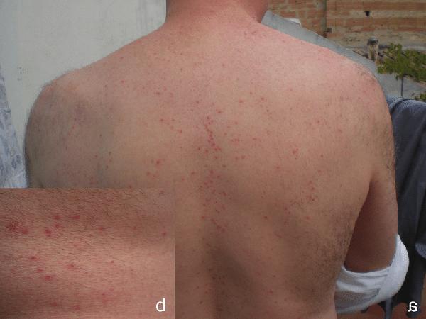 Mạt gà cắn người sinh ra những nốt đỏ trên da.